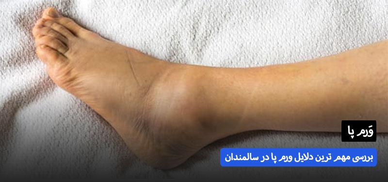 دلیل ورم پا در سالمندان چیست؟